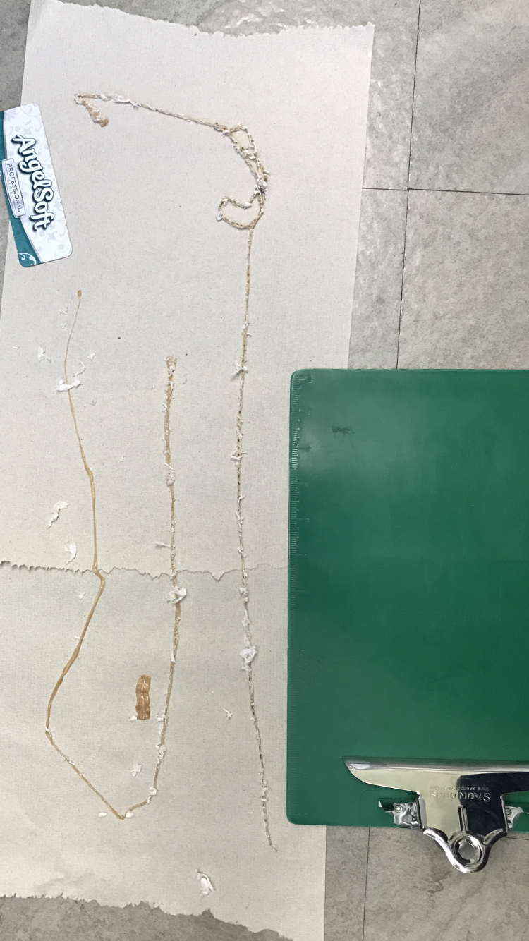 Fresno man pulls a 5 1/2 ft. tapeworm out while on the toilet (Photos courtesy of Dr.{ }Kenny Banh)