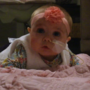 Bone marrow donor match found for 4-month-old baby girl