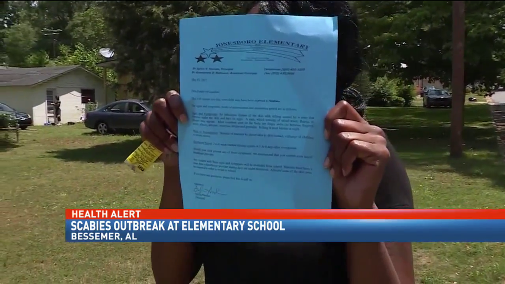 Letter To Parents About Contagious Outbreak At School