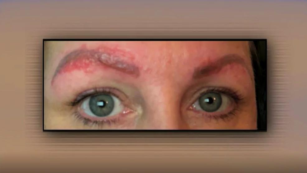 Woman hospitalized following eyebrow microblading
